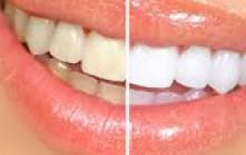 Jamal Skali – تبييض الأسنان – Blanchiment des dents